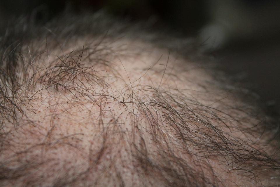 Haarwuchsmittel Test